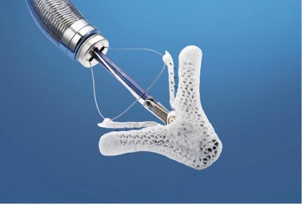Mitraclip, abbott, mitral valve repair, ACC, transcatheter mitral valve repair