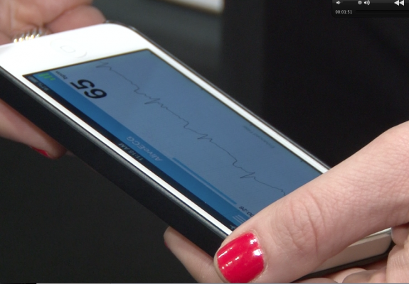 AliveCor enables a single-lead ECG recordings on a smartphone that can be immediately shared with physician, or scanned by an app to determine if there is an abnormality. These types of devices serve as a basis for mobile healthcare on demand.