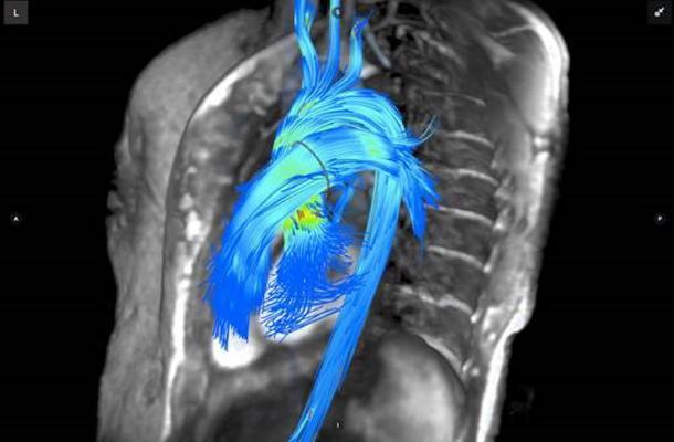 Arterys, Cardiac MRI, cardiac MRI advances