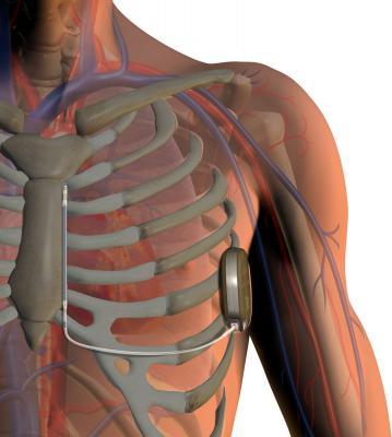 Boston Scientific Clinical Trial Implantable Cardioverter Defibrillator
