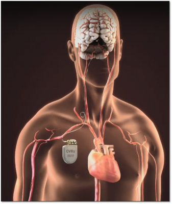 The CVRx neo, Baroreflex Neo therapy is for heart failure. It is a pacemaker like device for heart failure therapy. It was cleared by the FDA in August 2019.