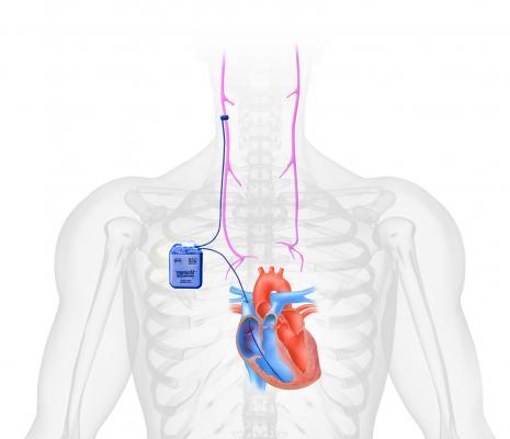 CardioFit vagus nerve stimulator