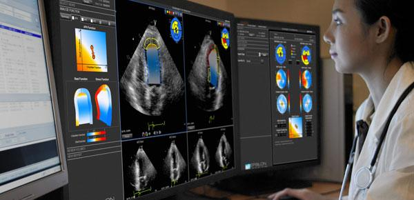 Epsilon's EchoInsight software to help evaluate cardiotoxcity due to chemotherapy or radiation therapy. epsilon, echoInsight, cardio-oncology