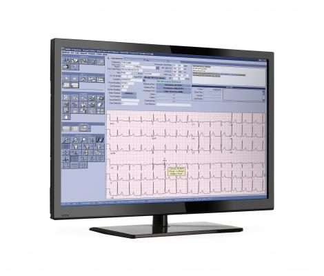 GE Healthcare released Version 9 of its Muse ECG management system at ACC.16. This latest version allows connectivity with non-GE ECG systems, including newer, wearable ECG monitors. GE Muse, ecg management system