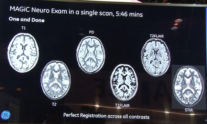 GE Healthcxare Signa Pioneer MAGIC six contrasts in one scan software by SyntheticMR.