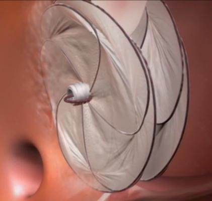 Cardioform Septal Occluder, PFO closure, PFO, ASD occlusion, hole in heart