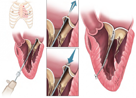 Harpoon Device May Improve Quality Frequency Of Mitral