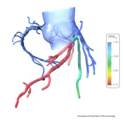 Heartflow FFR-CT report showing the hemodynalic significance of coronary lesions with a CT scan