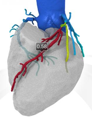 FFR-CT imaging developed by HeartFlow offers coronary flow data noninvasively. Clinical data so far shows close correlation with invasive catheter-based FFR measurements. The technology helps pinpoint ischemic culprit lesions and determine the severity of coronary stenosis.