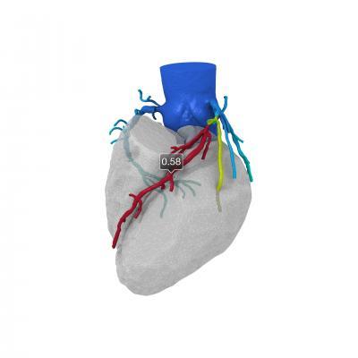 CT FFR, HeartFlow