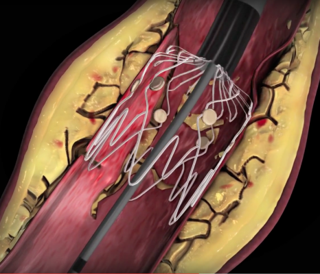 "Intact Vascular Inc. developed the Tack Endovascular System to repair artery dissections caused by balloon angioplasty. Rather than using a full-sized stent, this system ""tacks"" the vessel wall with a very short stent of only a few millimeters to avoid encasing the vessel with metal, which can lead to high restenosis rates."