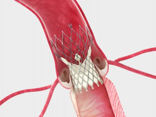 Corevalve, FDA, Edwards, TAVR, TAVI, lawsuit, injunction