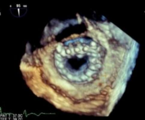 An 3D echo view of a Neovasc Tiara transcatheter mitral valve. This valve is currently in clinical trials and is ahead of most of the TMVR devices in development.