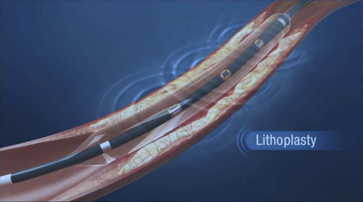 Shockwave Medical's Lithoplasty balloon catheters that use lithotripsy pulsatile mechanical energy bursts to shatter the calcium, rather than radial force of the balloon.