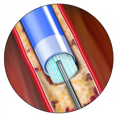 Spectranetics Peripheral Artery Disease Laser Atherectomy