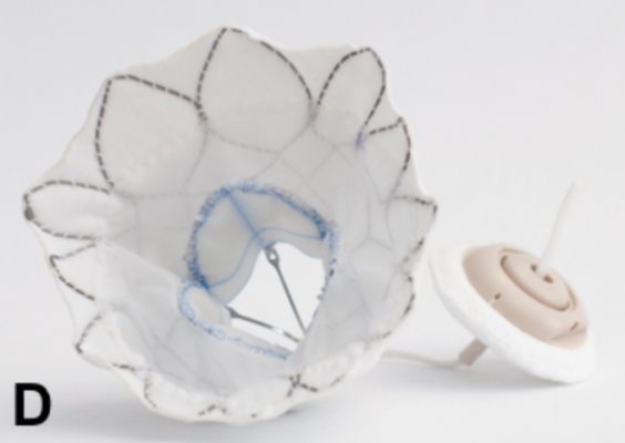 The Abbott Tendyne transcatheter mitral valve replacement (TMVR) system  is being tested in the SUMMIT Trial.
