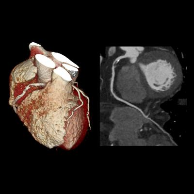 cardiac CT showing a severe right coronary artery lesion on a Toshiba Aquillion One