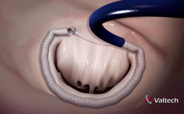 Valtech, cardioband, transcatheter mitral annuloplasty