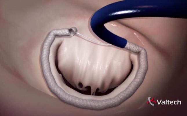 Valtech, Cardioband, transcatheter annuloplasty