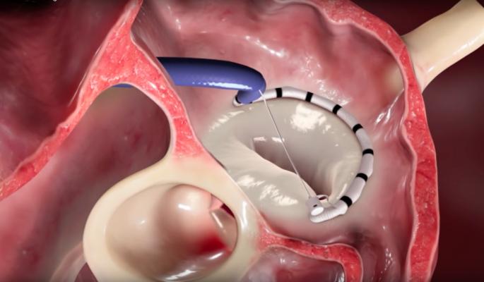 valtech cardioband transcatheter annuloplasty repair for FMR, functional mitral regurgitation