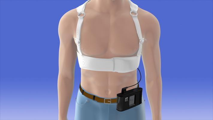 zoll, lifevest, wearable defibrillator