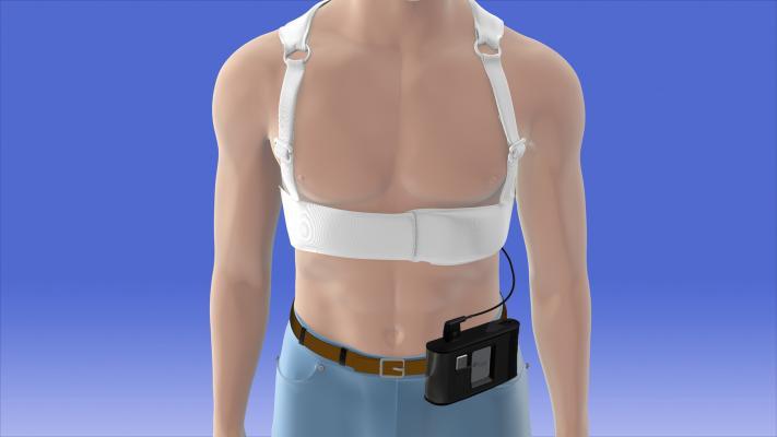 zoll, lifevest, wearable defibrillator