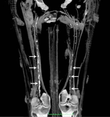 Heavy calcification of the iliofemoral arteries showing peripheral artery disease (PAD) in a 3,000 year old Egyptian mummy.