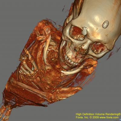 3-D reconstruction of an amulet wrapped inside a mummy as seen in a CT scan.