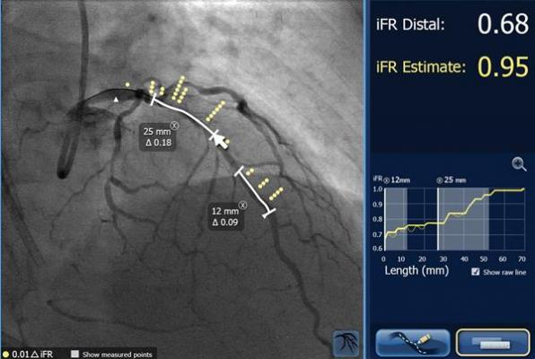 SyncVision iFR Co-registration from Philips Healthcare maps iFR pressure readings onto angiogram.