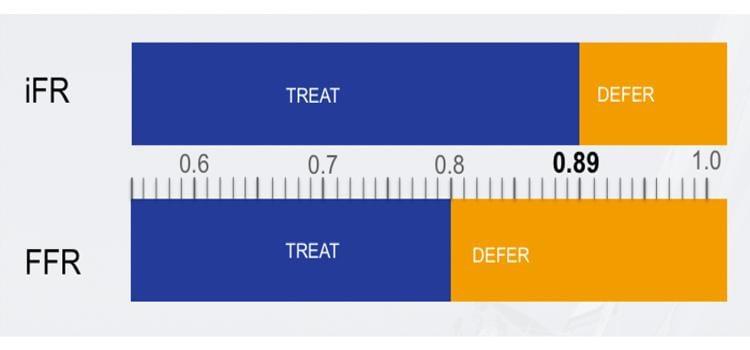 iFR, iFR vs. FFR, ACC late breaking trial, iFR-SWEDEHEART, DEFINE-FLAIR