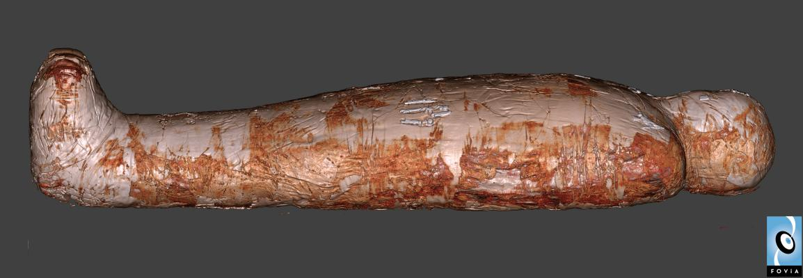 3-D reconstruction of a CT scan of a mummy.