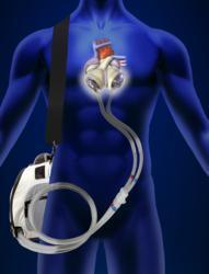 Syncardiac, driver, artificial heart