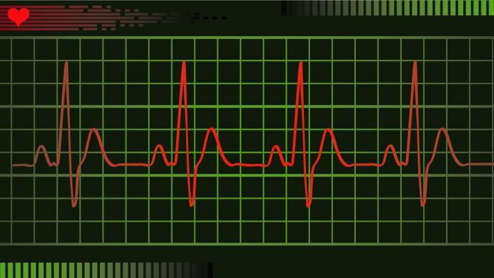 guideline, treating supraventricular tachycardia, ACC, AHA, HRS