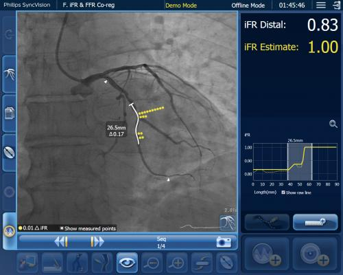 Philip's co-registration technology showing angiography overlaid with iFR in a coronary vessel segment with a system of dots that show regions where the hemodynamic pressure drops occur. This can aid in identifying culprit lesions.#TCT #TCT2020 #TCTconnect