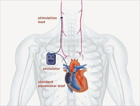 BioControl Medical Enrollment INOVATE-HF Study CardioFit System Heart Failure