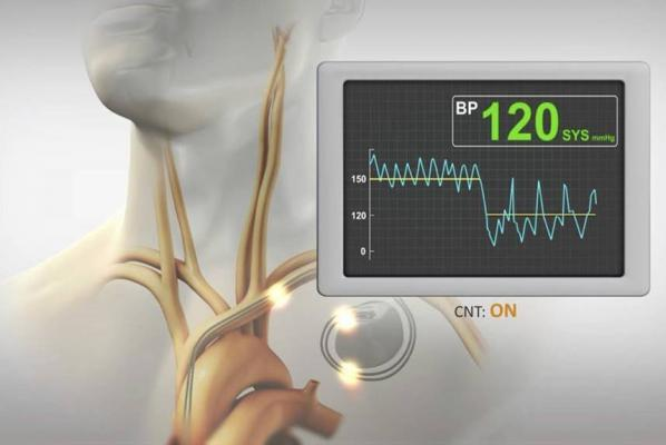 BackBeat CNT is the flagship therapy of Orchestra BioMed Inc. It is a bioelectronic treatment that immediately, substantially and chronically lowers blood pressure (BP) while simultaneously modulating the autonomic nervous system (ANS).