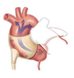 Sunshine Heart's C-Pulse System Heart Failure Treatment