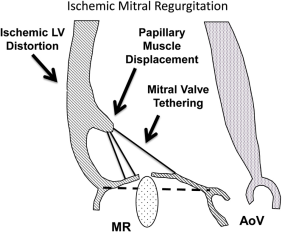 Updated AATS Guidelines Help Cardiovascular Surgeons Navigate Challenges of Managing Ischemic Mitral Regurgitation