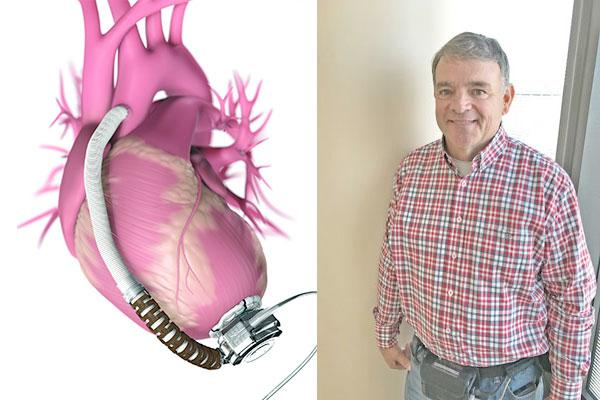 James Ward, LVAD surgery, left ventricular assist device, UAB, University of Alabama at Birmingham