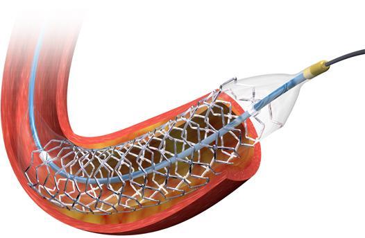 stents drug eluting biosensors tct 2012 transcatheter biomatrix neoflex spectrum