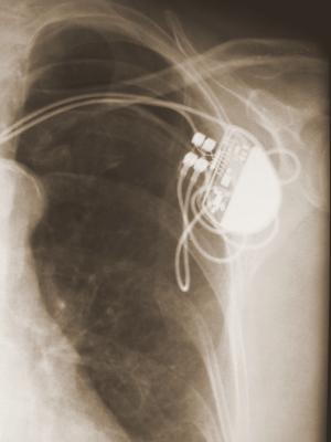 Pacemaker Lead Extraction Cook Medical