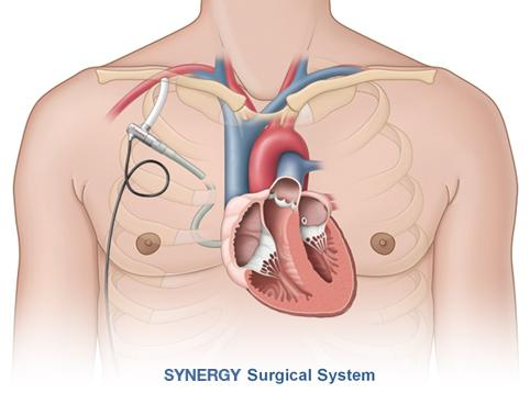 Synergy IC Circulatory Support System Circulite CE mark Trial
