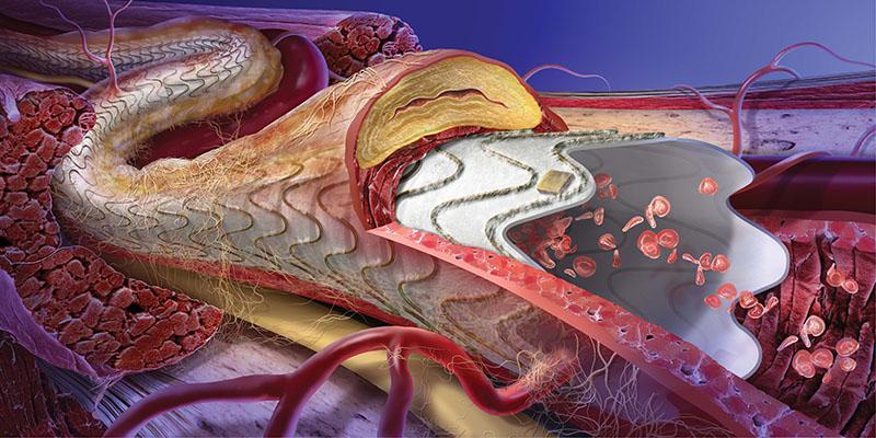 W.L. Gore FDA Approval Gore Viabahn Endoprosthesis