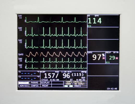 Cedars-Sinai Team Develops New Sudden Cardiac Arrest Risk Assessment Score