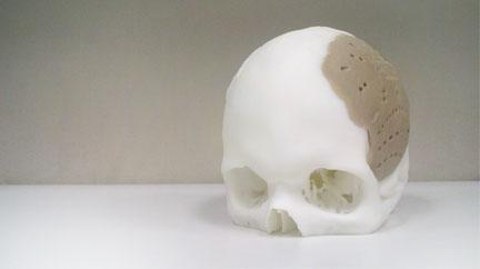 3-D printing, advanced visualization, Yale-OPM joint research program
