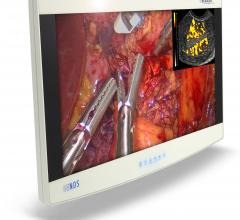 Radiance Ultra, NDS Surgical Imaging, flat panel displays, hybrid OR