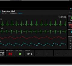 AirStrip Technologies Innovation Marketplace AIM ECG Remote Wireless Monitor