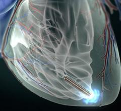 St. Jude Medical Nanostim Leadless Pacemaker EP Lab