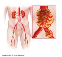 Gore AAAneurysm Outreach Abdominal Aortic Aneurysm AAA Stent Graphs