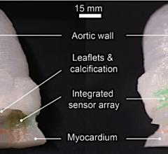 Researchers 3-D Print Lifelike Heart Valve Models with embedded sensor technology